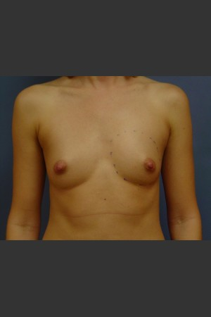 Before Photo for Breast Augmentation - Michael S. Beckenstein, MD - Prejuvenation
