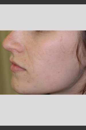 After Photo for Sublative Rejuvenation Treatment   - Lawrence Bass MD - ZALEA Before & After