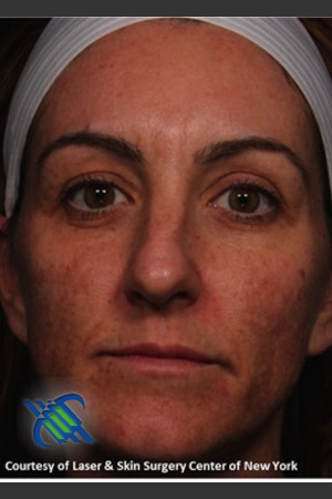 Before Photo for Full Face Skin Rejuvenation   - Lawrence Bass MD - ZALEA Before & After