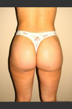 After Photo for Butt Augmentation - Sanjay Grover MD FACS - Prejuvenation