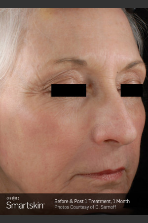 After Photo for Wrinkle Reduction With SmartSkin Resurfacing   - ZALEA Before & After