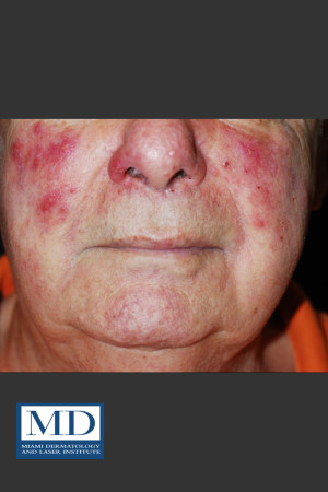 Before Photo for Rosacea Treatment 102 - Jill S. Waibel, MD - Prejuvenation