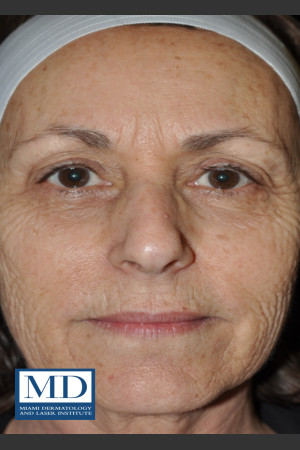 Before Photo for Wrinkle Treatment 124   - Jill S. Waibel, MD - ZALEA Before & After