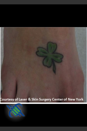 Before Photo for Treatment of Foot Tattoo   - Roy G. Geronemus, M.D. - ZALEA Before & After