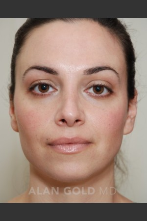 After Photo for Rhinoplasty 1683   - Alan Gold MD - ZALEA Before & After