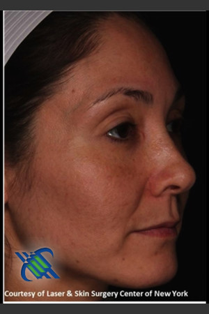 After Photo for Female Full Face Fraxel Treatment    - Lawrence Bass MD - ZALEA Before & After