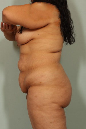 Before Photo for Tummy Tuck and Liposuction   - Lawrence Bass MD - ZALEA Before & After