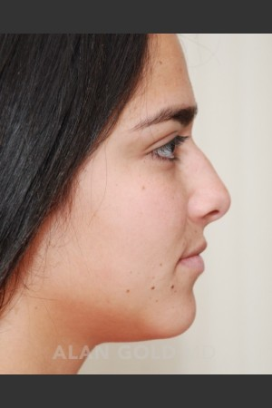 Before Photo for Rhinoplasty 1676 Side View   - Alan Gold MD - ZALEA Before & After