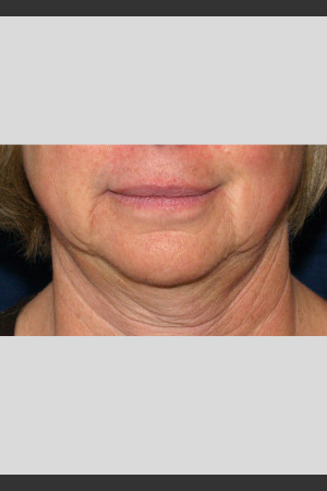 Before Photo for Profound Lower Face Lift Treatment   - ZALEA Before & After