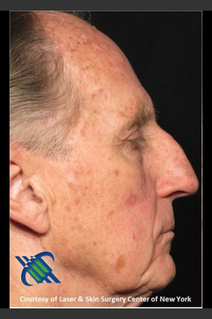 Before Photo for Full Face Treatment with Fraxel Right Side  - Roy G. Geronemus, M.D. - Prejuvenation