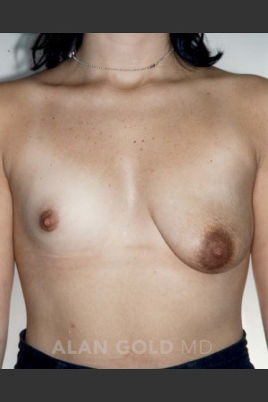Before Photo for Asymmetrical Breast 470   - Alan Gold MD - ZALEA Before & After