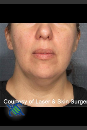 Before Photo for Laser Liposuction Submental Fat Treatment   - Roy G. Geronemus, M.D. - ZALEA Before & After