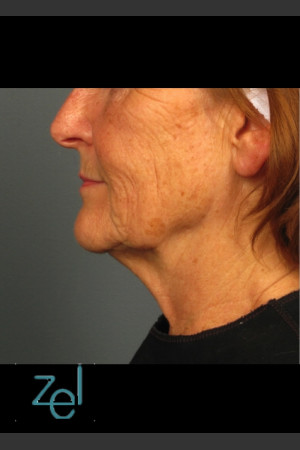 Before Photo for Ultherapy on Mid Face with Dermal Fillers   - Brian D. Zelickson, M.D. - ZALEA Before & After