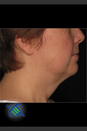 After Photo for Laser Liposuction Left Side of Neck   - Roy G. Geronemus, M.D. - ZALEA Before & After