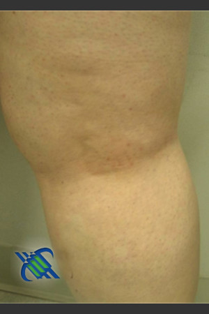 After Photo for Treatment of Leg Veins - Roy G. Geronemus, M.D. - Prejuvenation
