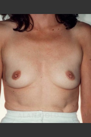 Before Photo for Breast Augmentation 582   - Alan Gold MD - ZALEA Before & After