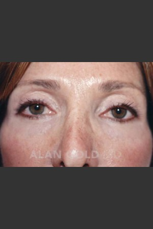 After Photo for Blepharoplasty 1004 - Alan Gold MD - Prejuvenation