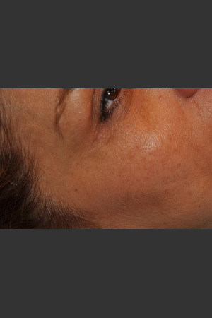 After Photo for Dr. Palmer Vein Removal 01   - Shane Palmer - ZALEA Before & After