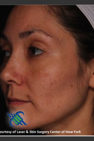 After Photo for Treatment of Melasma on the Left Side   - Roy G. Geronemus, M.D. - ZALEA Before & After