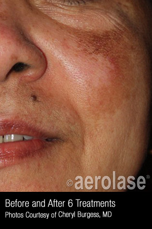 After Photo for Treatment of Melasma #319 -  - Prejuvenation