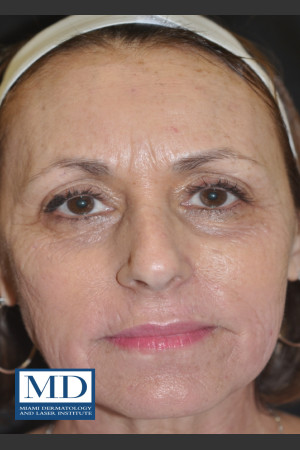 After Photo for Wrinkle Treatment 124   - Jill S. Waibel, MD - ZALEA Before & After