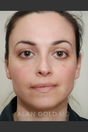 Before Photo for Rhinoplasty 1683   - Alan Gold MD - ZALEA Before & After
