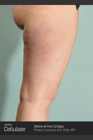After Photo for Cellulaze Cellulite Treatment of the Thighs   - ZALEA Before & After