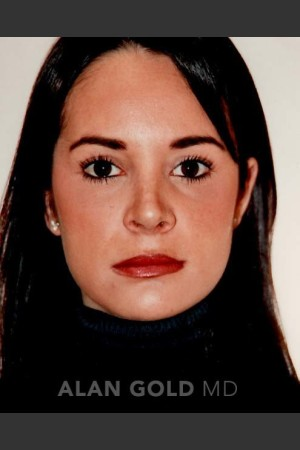 After Photo for Rhinoplasty 194   - Alan Gold MD - ZALEA Before & After
