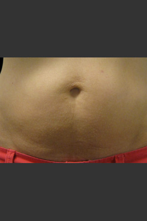 After Photo for Body Contouring Treatment #124   - ZALEA Before & After