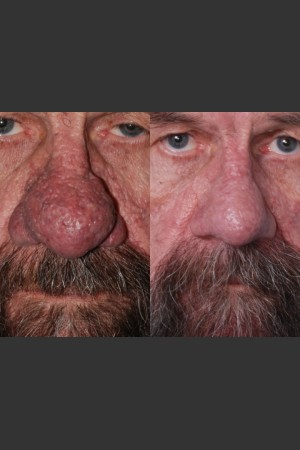 Before Photo for Rhinophyma   - Mark B. Taylor, M.D. - ZALEA Before & After