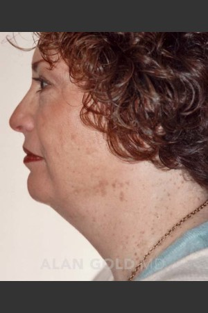Before Photo for Liposuction of Neck 89 Side View   - Alan Gold MD - ZALEA Before & After
