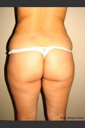 Before Photo for Butt Augmentation - Sanjay Grover MD FACS - Prejuvenation