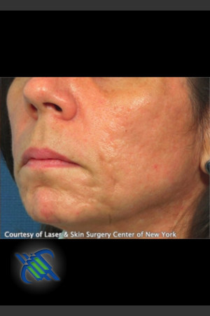 After Photo for Treatment of Lower Face Acne Scaring   - Roy G. Geronemus, M.D. - ZALEA Before & After