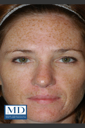 Before Photo for Photorejuvenation Treatment 110   - Jill S. Waibel, MD - ZALEA Before & After