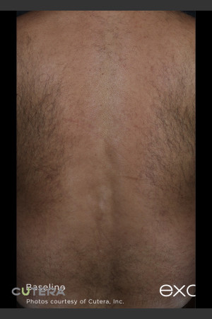 Before Photo for Hair Removal of Full Back With Excel HR   - ZALEA Before & After