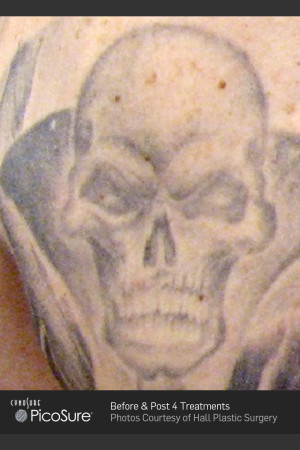 Before Photo for Tattoo Removal of Skull   - ZALEA Before & After