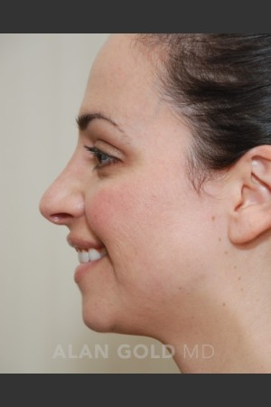 After Photo for Rhinoplasty 1683 Side View   - Alan Gold MD - ZALEA Before & After