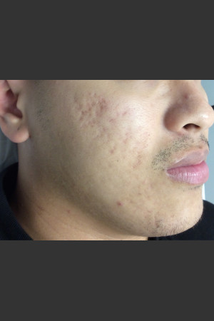 After Photo for Microneedling    - Janell Ocampo - ZALEA Before & After