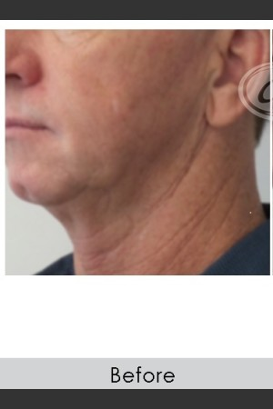 Before Photo for Male Jawline Enhancement with Radiesse   - Annie Chiu, MD - ZALEA Before & After