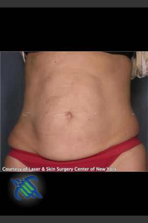 Before Photo for Treatment of Abdomen with VelaShape   - Roy G. Geronemus, M.D. - ZALEA Before & After