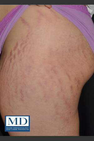 Before Photo for Striae Treatment 127 - Jill S. Waibel, MD - Prejuvenation