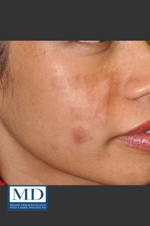Before Photo for Post Inflammatory Hyperpigmentation 119 - Jill S. Waibel, MD - Prejuvenation
