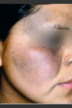 Before Photo for Quanta MDK Nevus of Ota Treatment #76   - Lawrence Bass MD - ZALEA Before & After