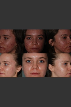 Before Photo for Laser Treatment of Acne   - Mark B. Taylor, M.D. - ZALEA Before & After