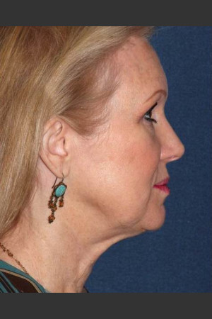 After Photo for Non-invasive Chin Contouring - Dr. Sabrina G. Fabi - Prejuvenation