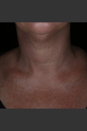 Before Photo for Alastin Skincare Restorative Neck Complex with TriHex Technology®   - ZALEA Before & After
