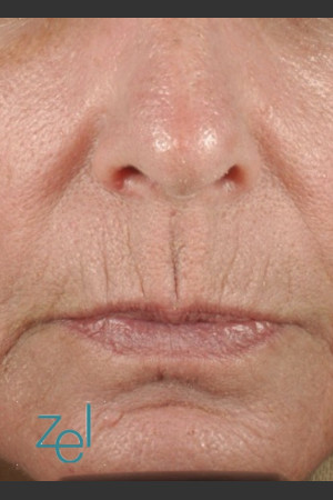 Before Photo for Treatment of Peri-Oral Lines and Wrinkles   - Brian D. Zelickson, M.D. - ZALEA Before & After