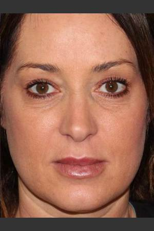 After Photo for Lip Augmentation   - Lawrence Bass MD - ZALEA Before & After