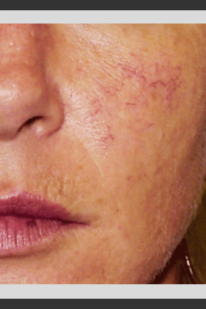 Before Photo for Vbeam. Pulsed Dye Laser treatment of Rosacea   - ZALEA Before & After