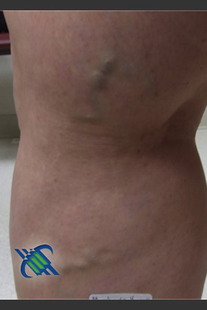 Before Photo for Treatment of Leg Veins - Roy G. Geronemus, M.D. - Prejuvenation
